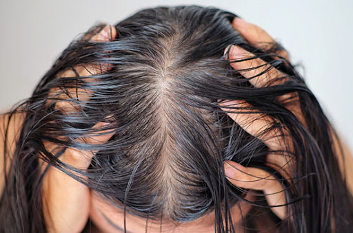 Oily Hair – Hair Challenges